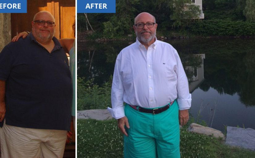 Type_2_Nation_Gastric_Sleeve_Surgery_Results_945px