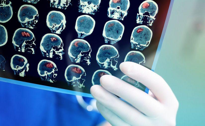 Type_2_Nation_Metformin_Medical_Imaging_Safe_945px