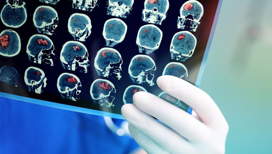 Metformin Deemed Safe for Most Medical Imaging - Type 2 Nation